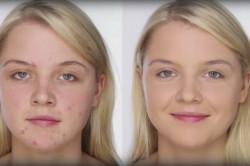 Маскировка прыщей при помощи макияжа