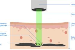 Схема удаления татуажа лазером