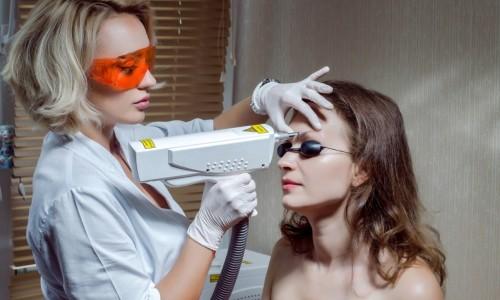 Процесс удаления татуажа бровей
